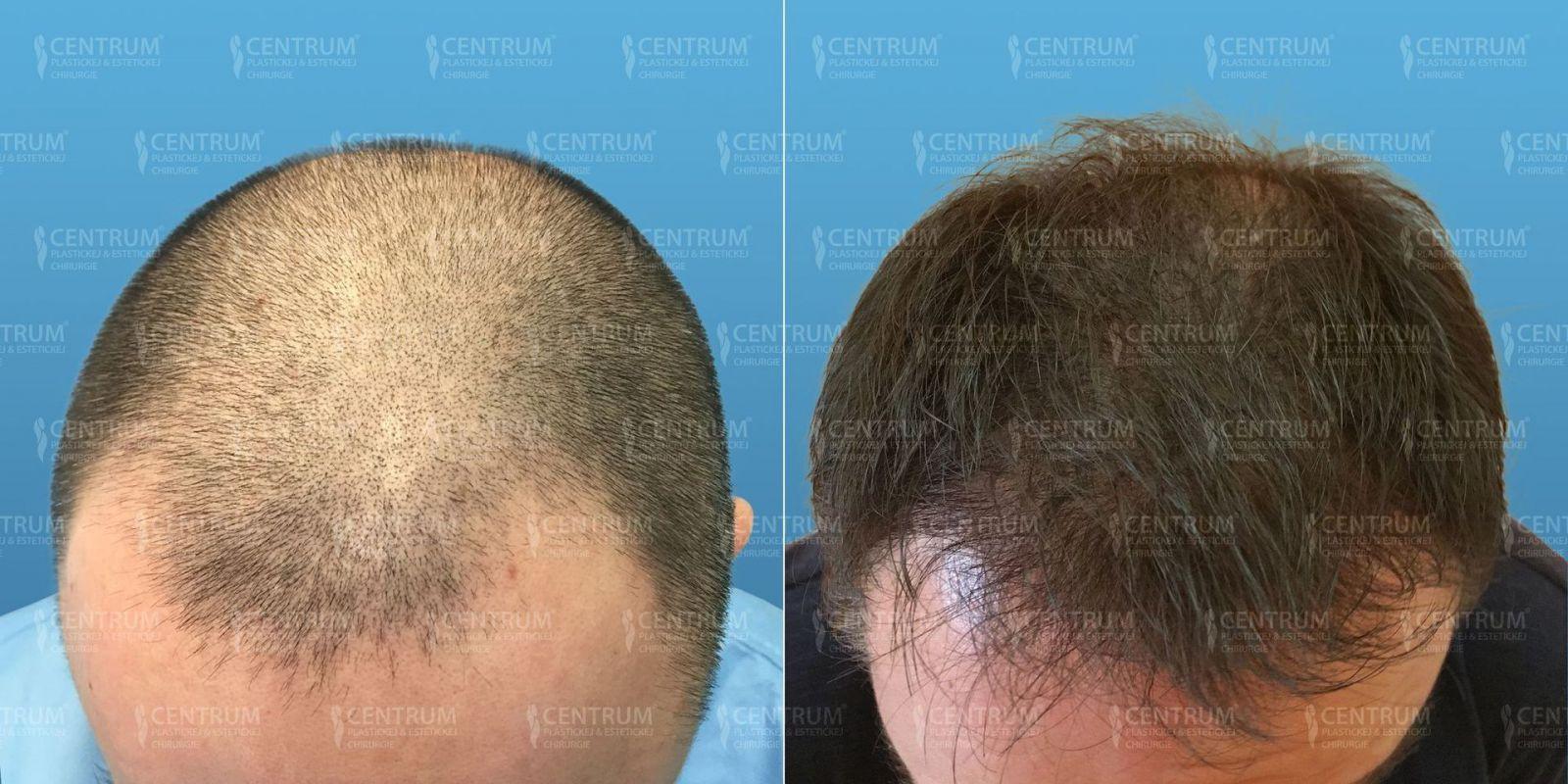 Minimálne invazívna automatizovaná FUE metóda transplantácie vlasov  (NEOGRAFT) ... 3623a562176