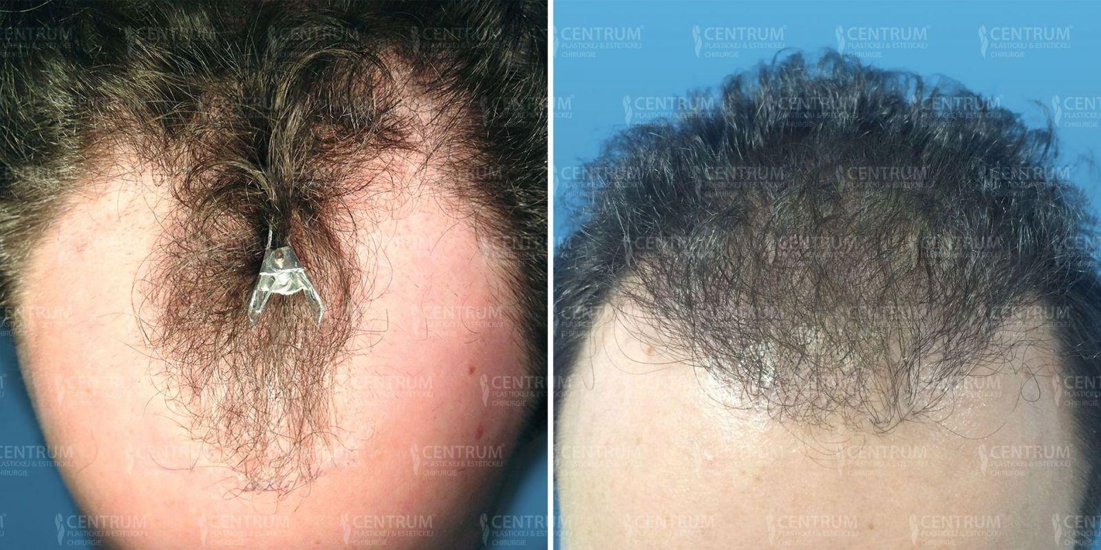 ... Minimálne invazívna automatizovaná FUE metóda transplantácie vlasov  (NEOGRAFT) 9512a370d21